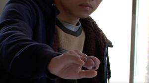 黄さんが実習中に負った指の怪我